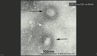 Coronavirüsün, Güney Kore'de ilk defa bir Japon'u enfekte ettiği doğrulandı